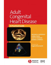 Adult Congenital Heart Disease: a Practical Guide